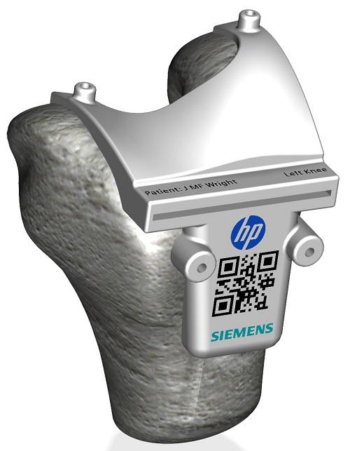Siemens and HP Color 3D Printed Surgical Cutting Guide